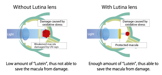 Tokai LUTINA lenses protection