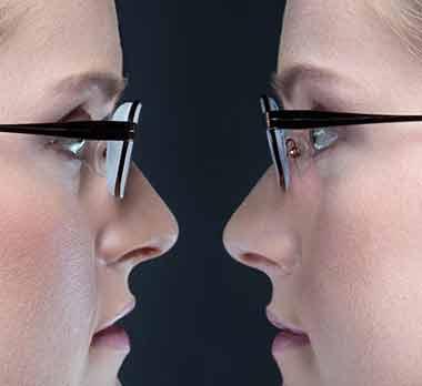 Διαφορα στο πάχος μεταξύ απλών γυαλιών και υψηλού δείκτη διαθλασης dec64e86e2e